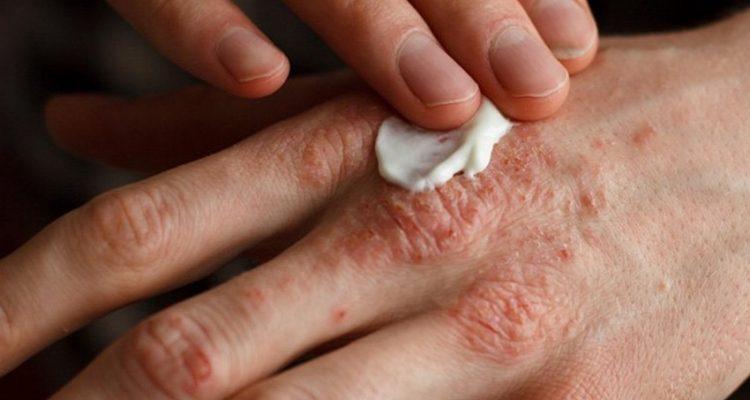 eczema lotion crème filaggrine dermatite atopique proteine gene