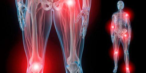 arthrite, génétique, évolution, migration