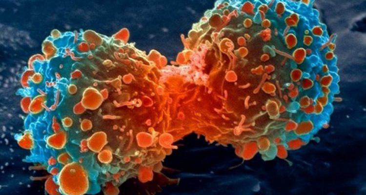 Un nouveau traitement autorisé — Leucémie