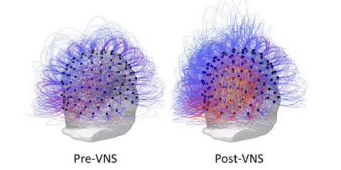 simulation VNS cerveau electrodes conscience reponse