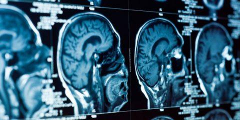 cerveau étude depression