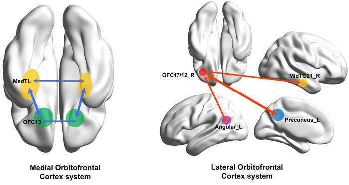 cerveau dépression cause physique