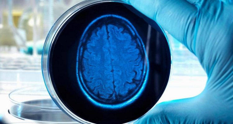 cerveaux humains culture élevage étude biologie médecine