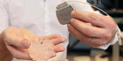 pont neural electrodes paralysie neuroscience médecine