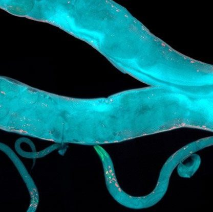 c elegans vers nematodes proteine genetique epigenetique