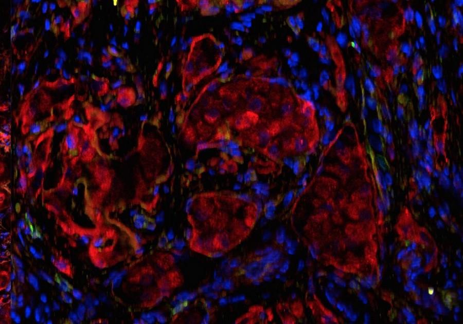 pancreas artificiel diabete soigner insuline cellules ilots nouveau tissus