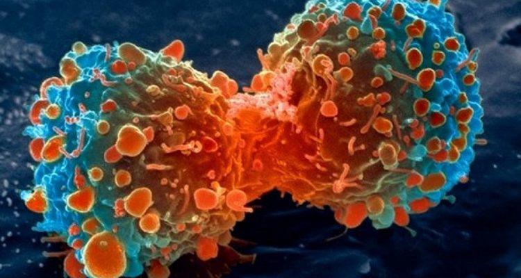 un nouveau traitement contre le cancer qui r organise les cellules humaines vient d tre. Black Bedroom Furniture Sets. Home Design Ideas