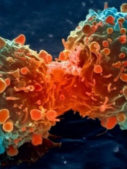 cancer cellule cancéreuse traitement fda