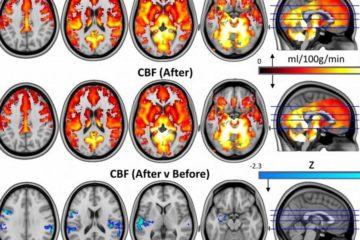 cerveau psychédélique dépression champignons magiques