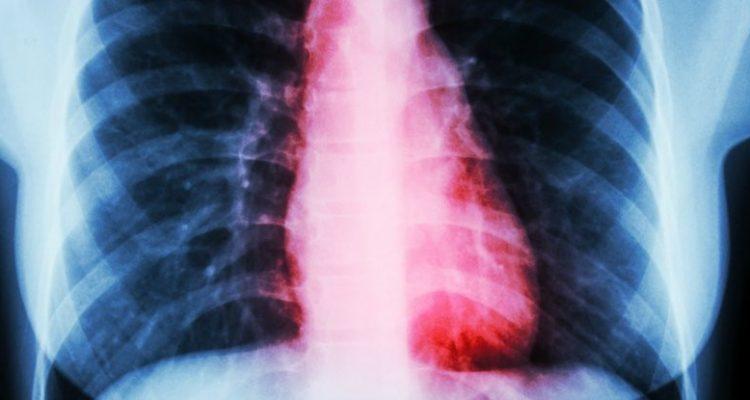 coeur brisé syndrome clinique cardiaque