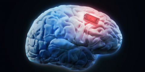 cerveau augmentation boost mémoire implant