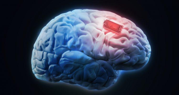 cerveau augmentation boost mémoire implant