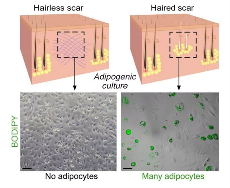 peau cellule peau régénération blessure plaie cicatrice