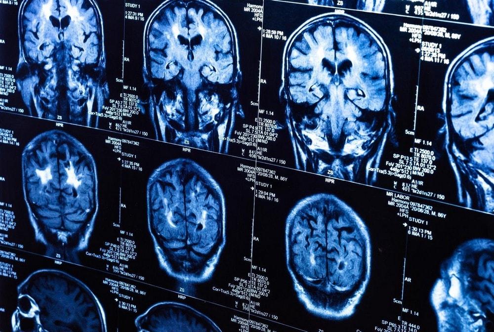 cerveau irm irmf imagerie résonnance réponse suivi tracking pensée timing