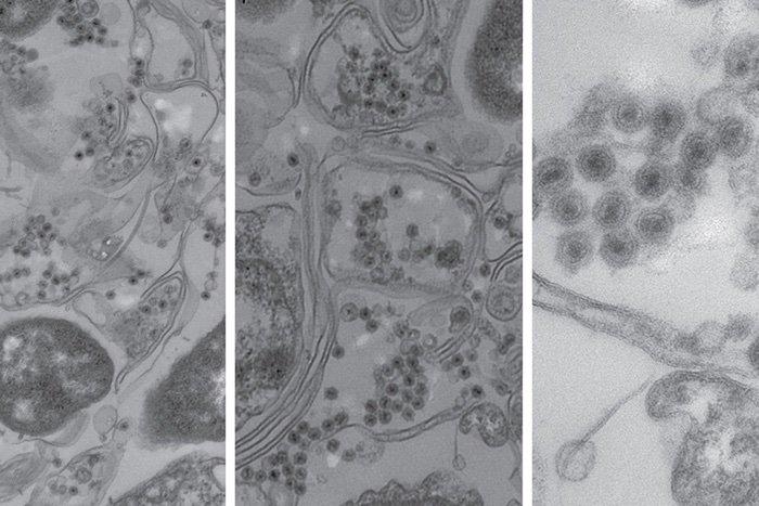 virus sans queue bactérie océan bactériophage