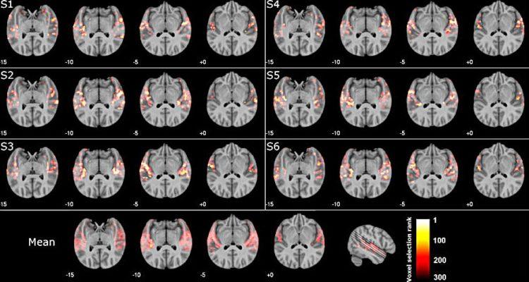 cerveau reconnaitre musique irm