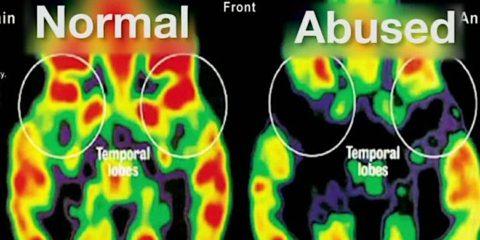 cerveau traumatisme comparaison pet scan