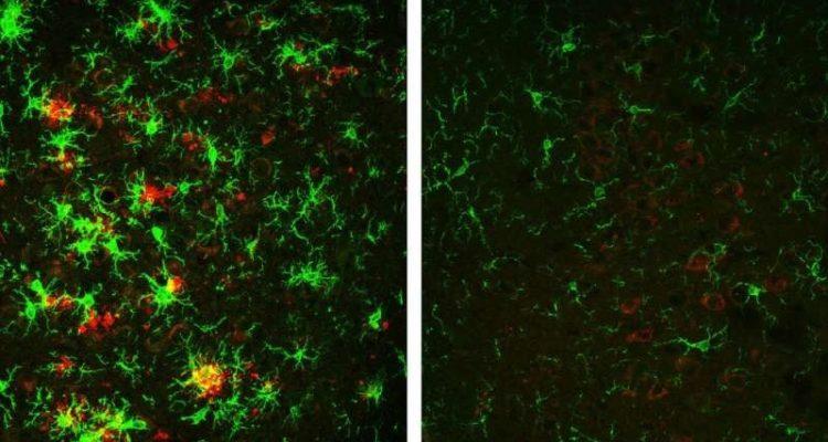 diminution plaques amyloides maladie alzheimer