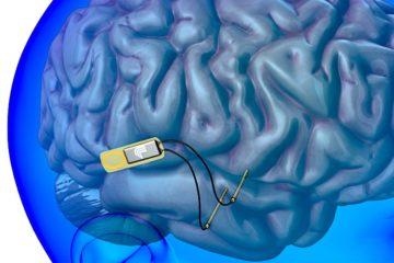 implant cerebral