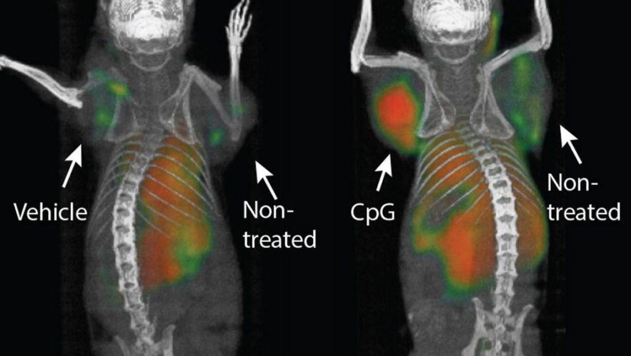 vaccin tumeur cancer éradiquer traitement immunothérapie système immunitaire