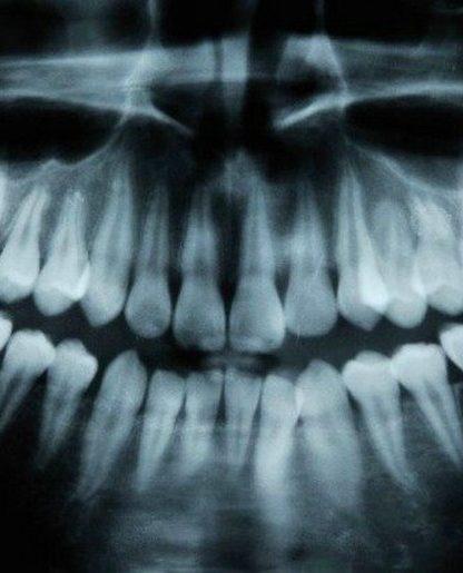 dents irm caries cavité naturel traitement