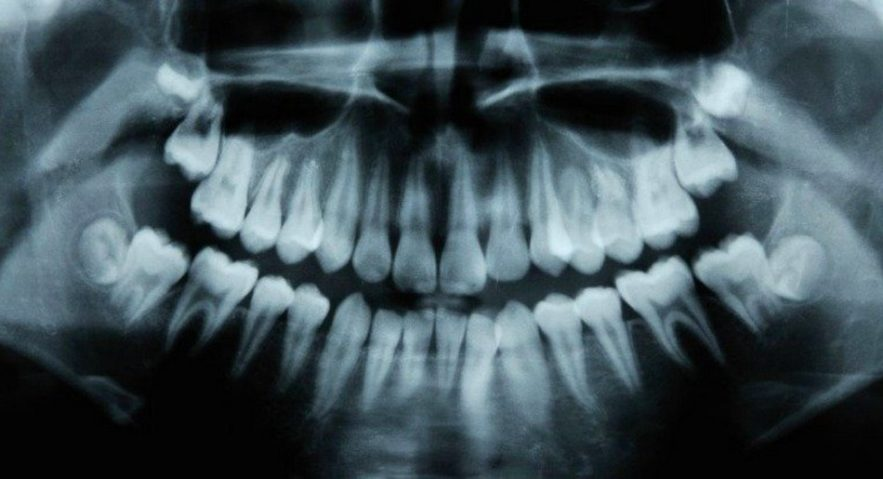 dents irm caries cavité naturel traitement