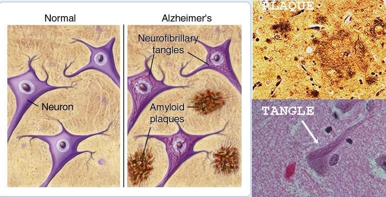 alzheimer lesions