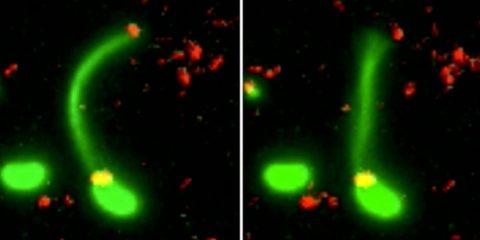 bacterie pilus