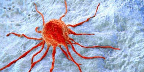 cancer sein chimiotherapie non necessaire recidive stade precoce