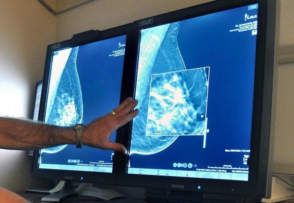 cancer sein traitement nouveau guerison retablissement