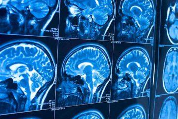 liquide sang cerveau decouverte
