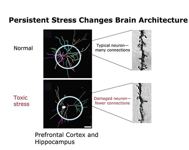 stress toxique