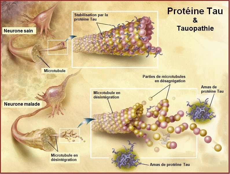 tau microtubules