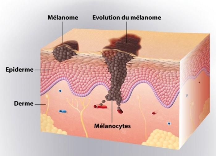 melanome cancer melanocytes