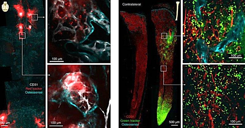 canaux directs cerveau fluorescents