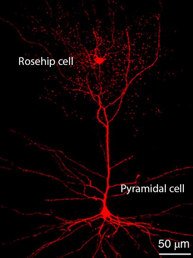 cellules neurones cerveau