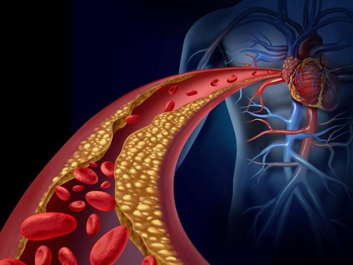 gluten maladies coeur diabete