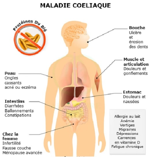 maladie coeliaque intolerance gluten
