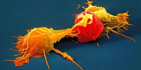 cellules tueuses naturelles-traitement cancer