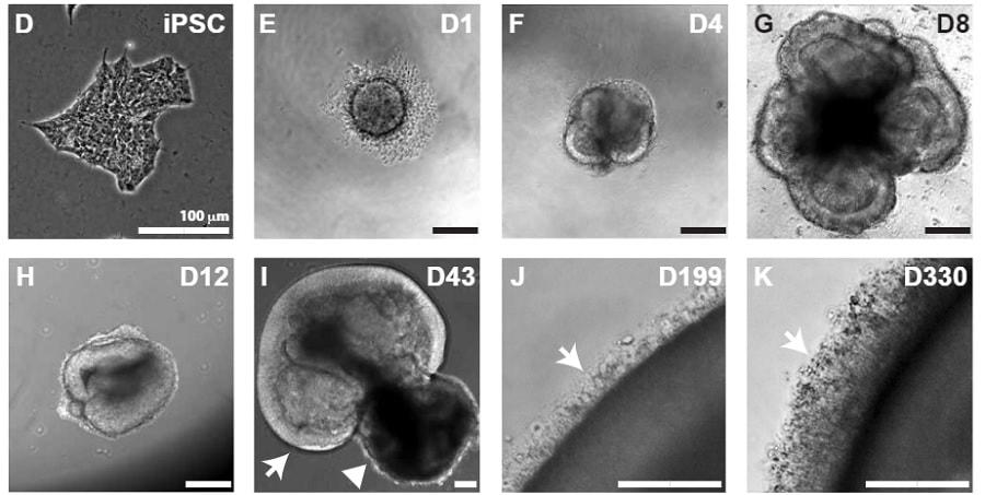 evolution organoide retine