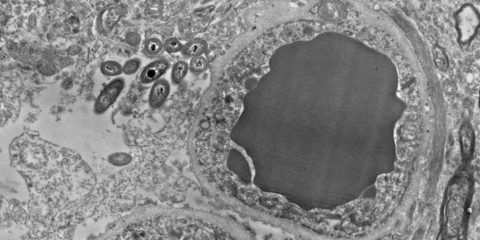 bacterie microbe cerveau intestins