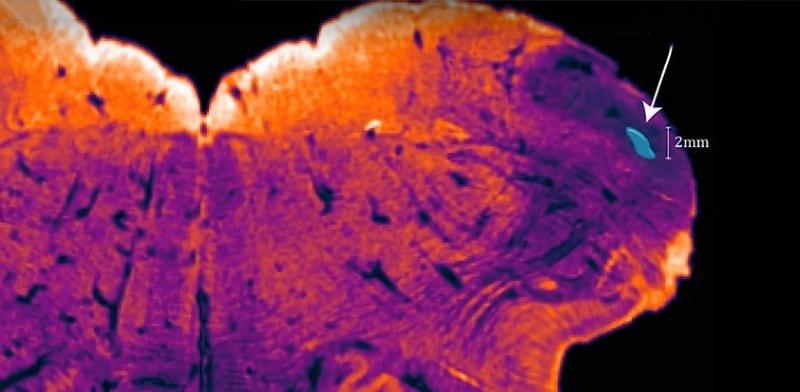 cerveau noyau endorestiforme