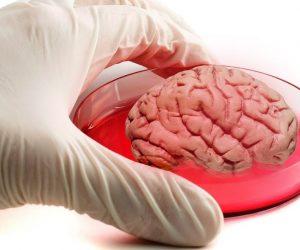 mini cerveaux laboratoire