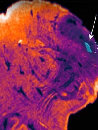 noyau endorestiforme cerveau humain