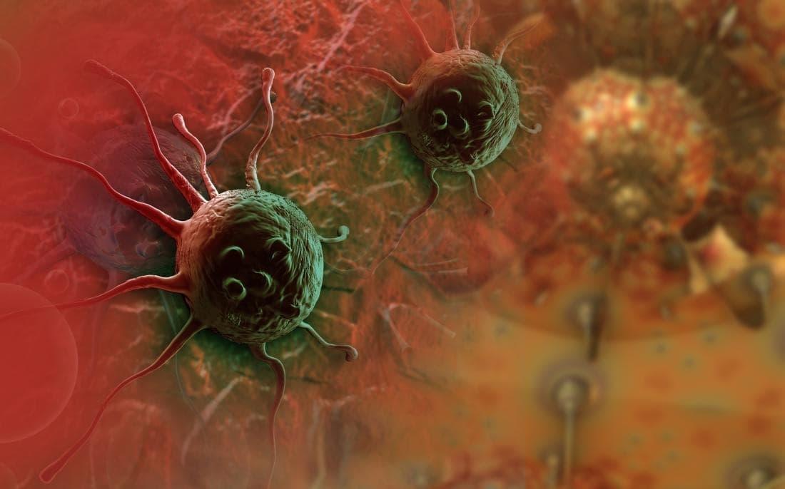 tumeurs cancer resistance traitements