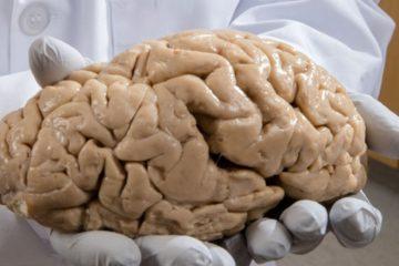 cerveau anatomie autisme trouble neurologique neurologie schizophrenie bipolaire
