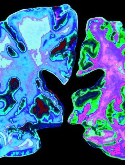 cerveau maladie alzheimer neurodegenerative cellules proteine tau beta amyloide