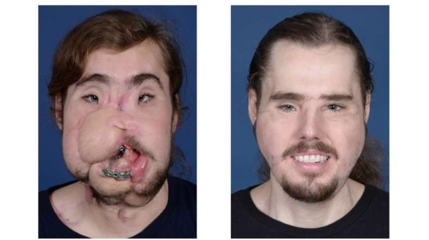 transplantation visage underwood