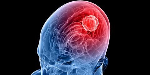 tumeur cerveau glioblastome