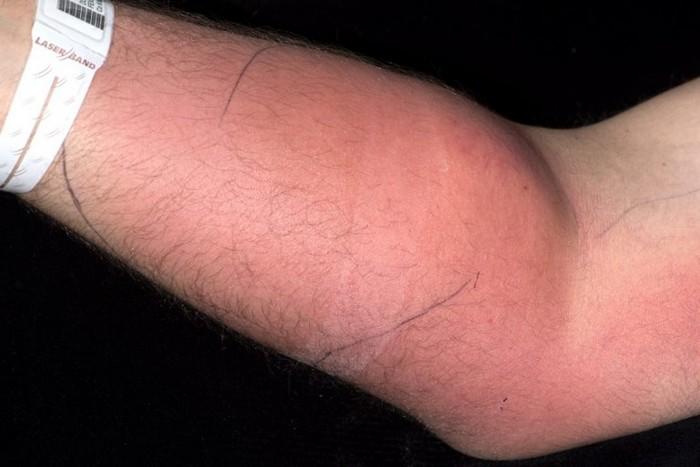 semence sperme injection bras homme trentaine mal dos traitement douteux